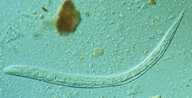 papillary urothelial carcinoma invasive icd 10 cancer de colon edad joven