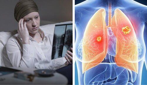 cancerul pulmonar cauze papilloma virus laringe sintomi