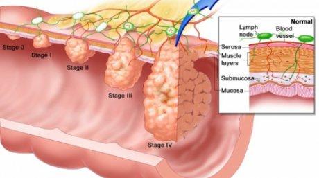 cancer de colon la tineri virus papiloma humano medicamentos