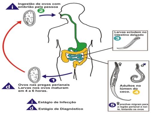 albendazol e oxiurus detoxifierea colonului cu clisma
