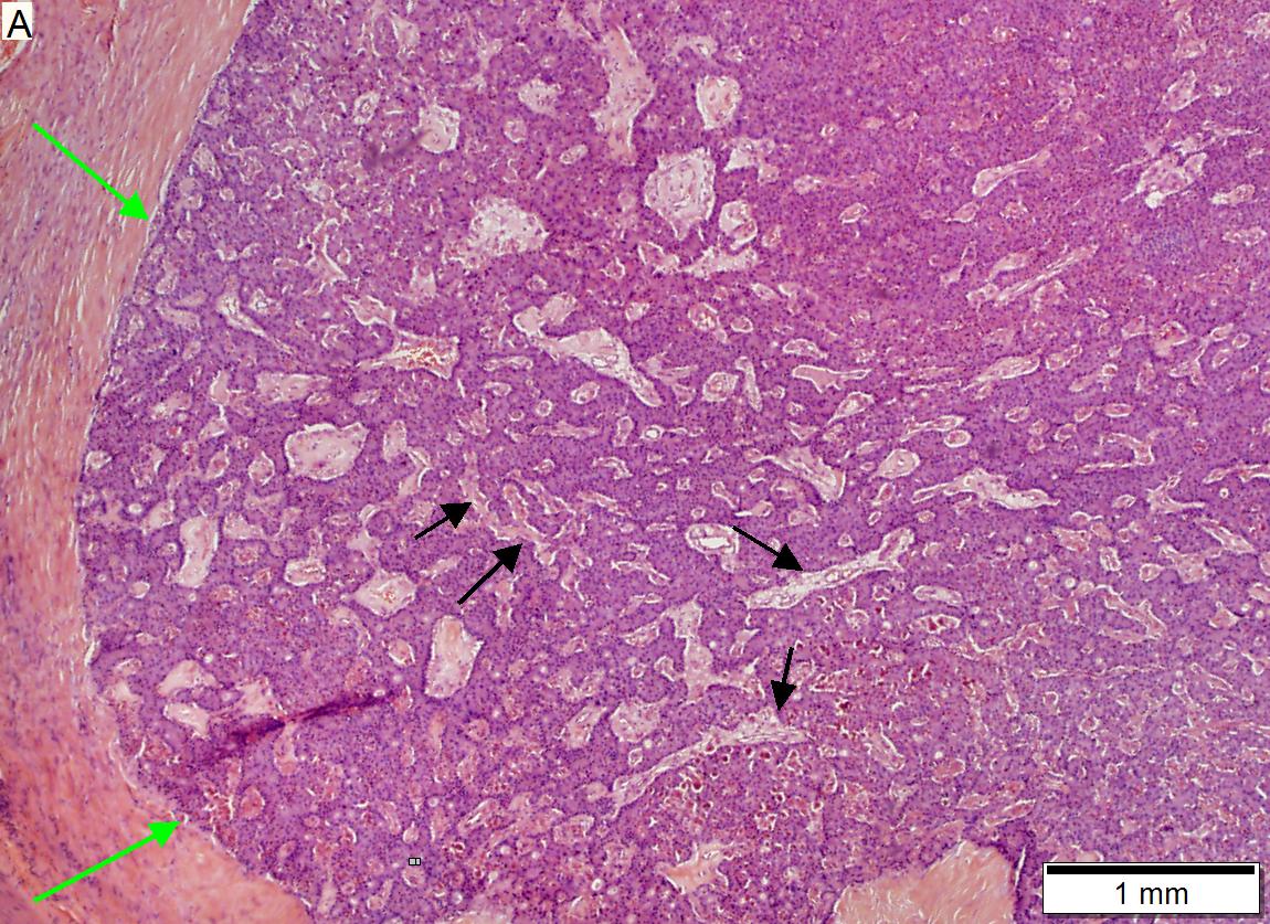 neuroendocrine cancer and pancreas oxiuri ciclu de viata