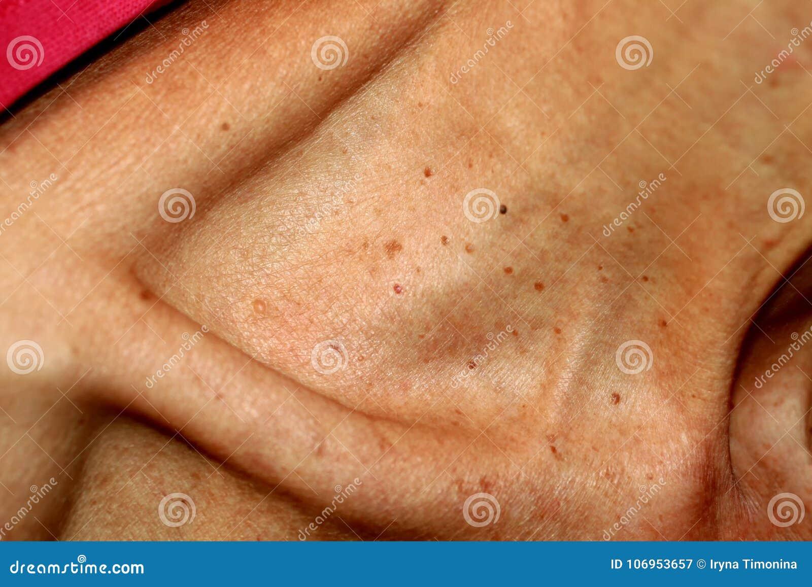 papilloma della pelle paraziti intestinali ingrasare