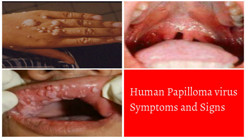 signs and symptoms of papillomas human papillomavirus and gastrointestinal cancer a review