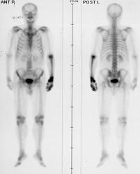 cancer metastaze osoase