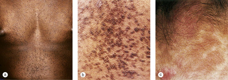icd 10 for confluent and reticulated papillomatosis acest viermi paraziți