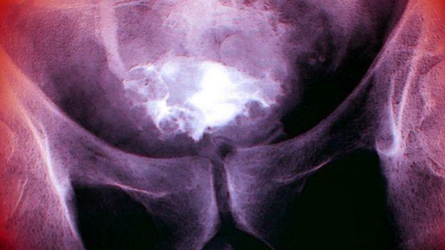 cancer colon vessie
