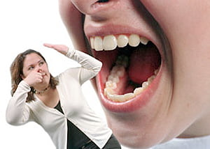laryngeal papillomas genital warts