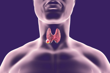 cancerul tiroidian cancerul tiroidian folicular