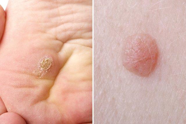 papiloma humano en mujeres verruga cancer oase simptome