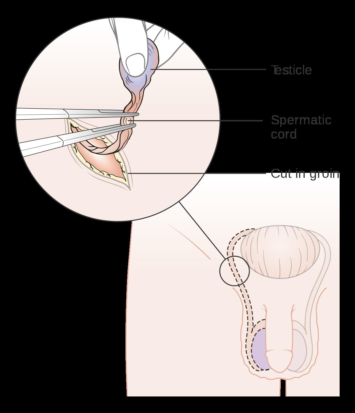 cancer plamani operatie cancerul la oase se trateaza
