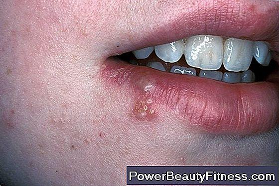 hpv nella gola sintomi