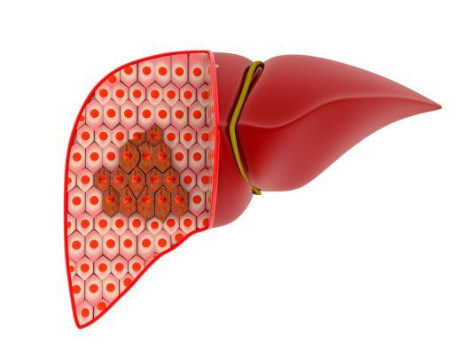 genetic cancer of liver