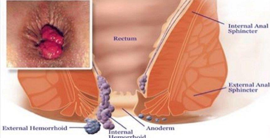 papillary thyroid cancer hcc tratament pt paraziti simptome