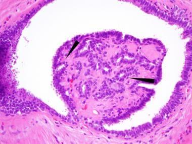 duct papilloma histology