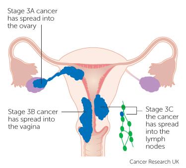uterine cancer uk