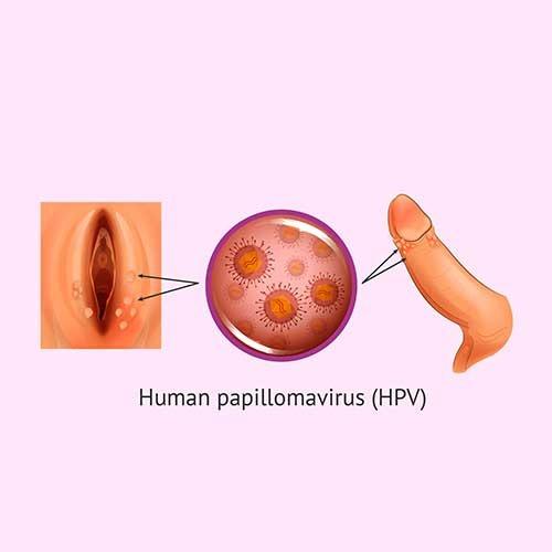 hpv virus and genital warts treatment of juvenile laryngeal papillomatosis