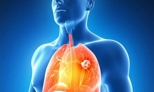 noutati in cancer pulmonar