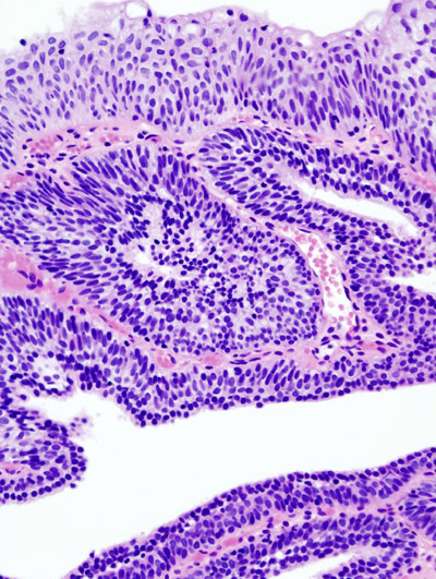hpv causa cancer em homens cervical cancer virgin