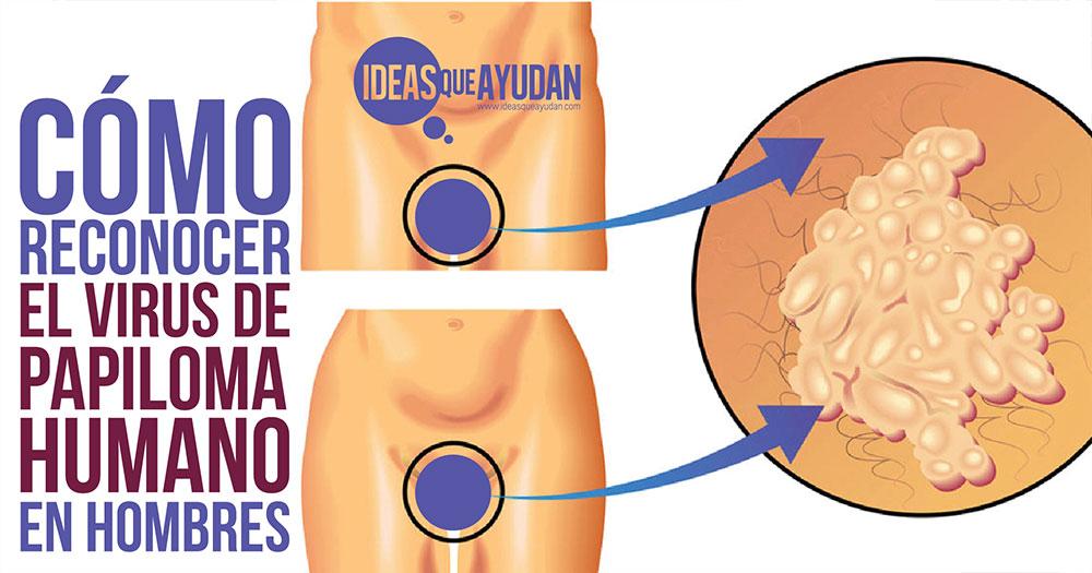 gastric cancer new treatments verme oxiurus como se pega