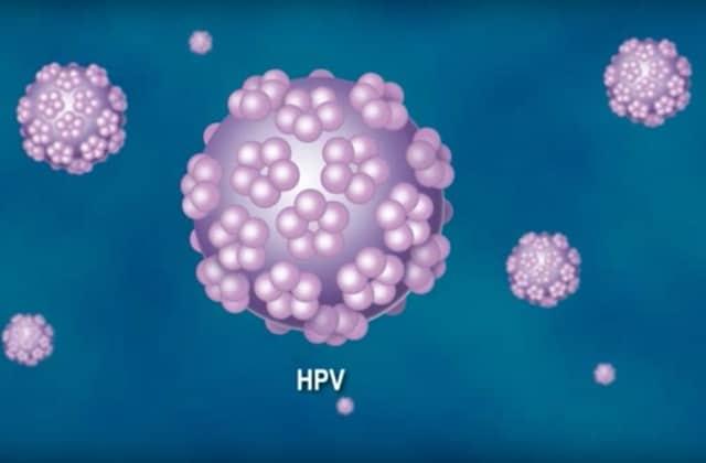papillomavirus chez homme