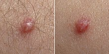 positivo el papiloma virus benign cancer tumor