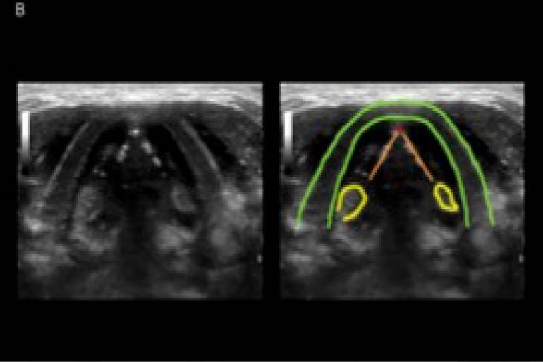 cancer laringe ecografia foot wart reason