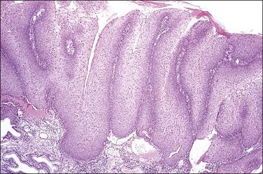 condyloma acuminata lsil virus papiloma humano en mujeres sintomas imagenes
