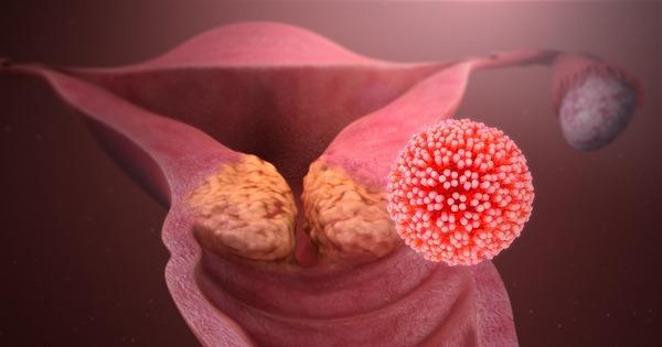 cervical cancer youngest age cancer de pancreas noticias