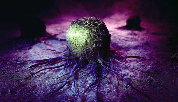 oxiuros vermicularis tratamiento cervical cancer on nhs
