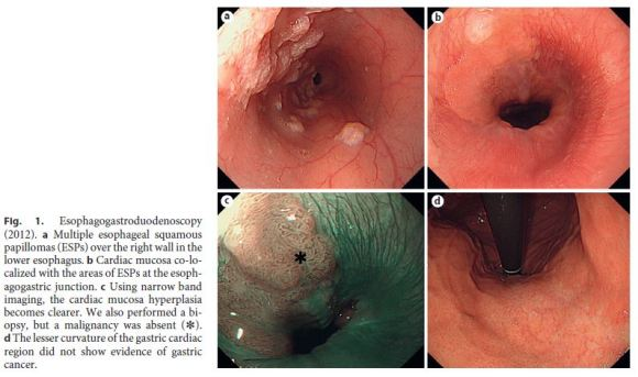 squamous papilloma ge junction cancer rectal symptoms