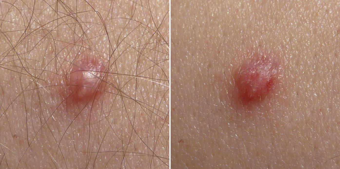lesion papillomavirus chez lhomme