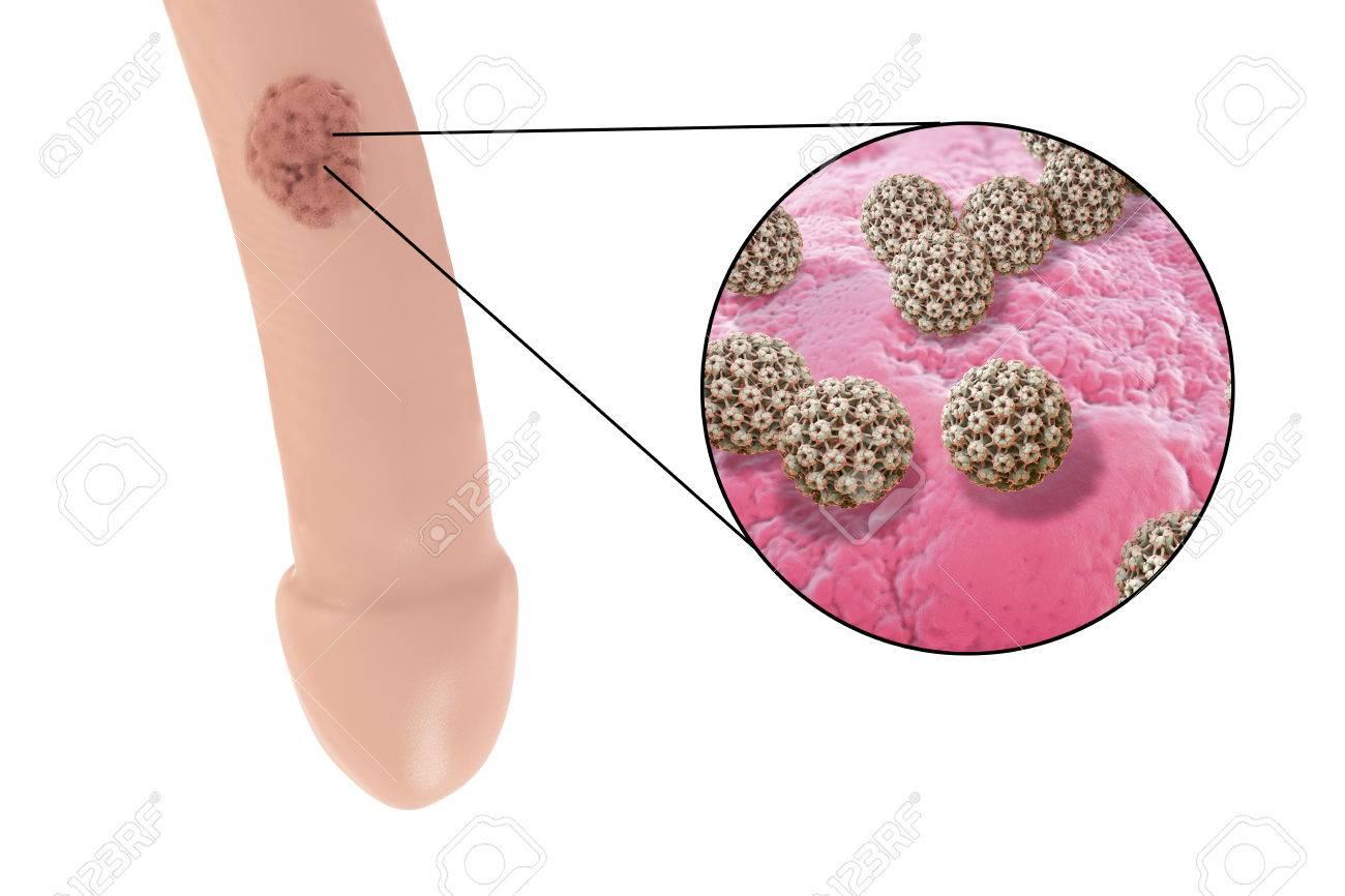 wart virus lesion