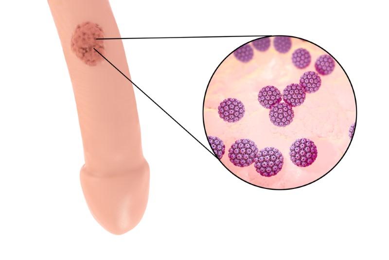 papillomavirus behandlung man