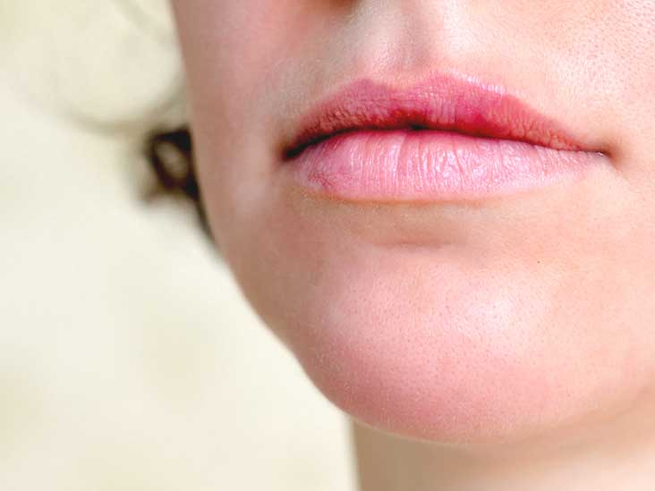 hpv skin lips anthelmintic use