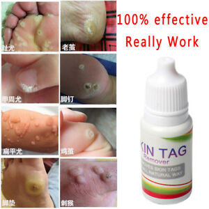 warts and treatment