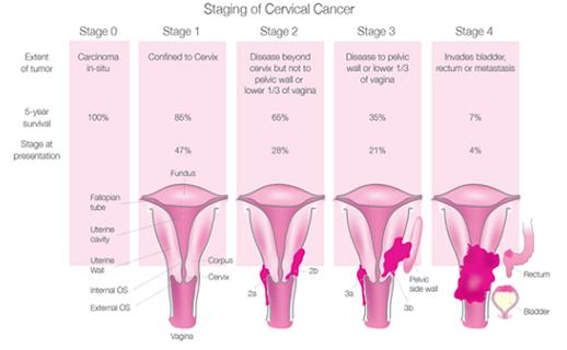 cervical cancer tnm
