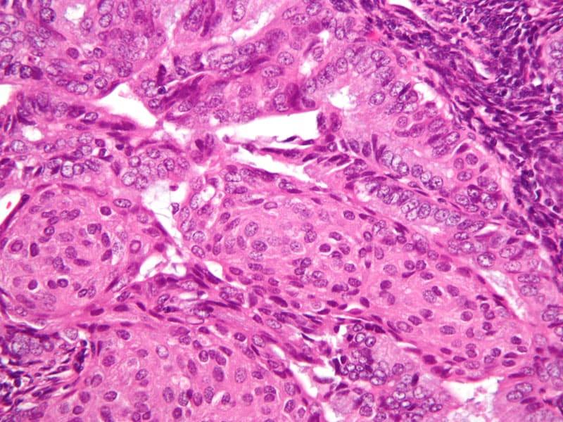 cervical cancer on nhs