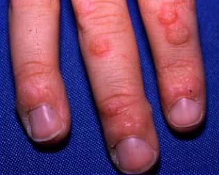 warts on hands hpv virus