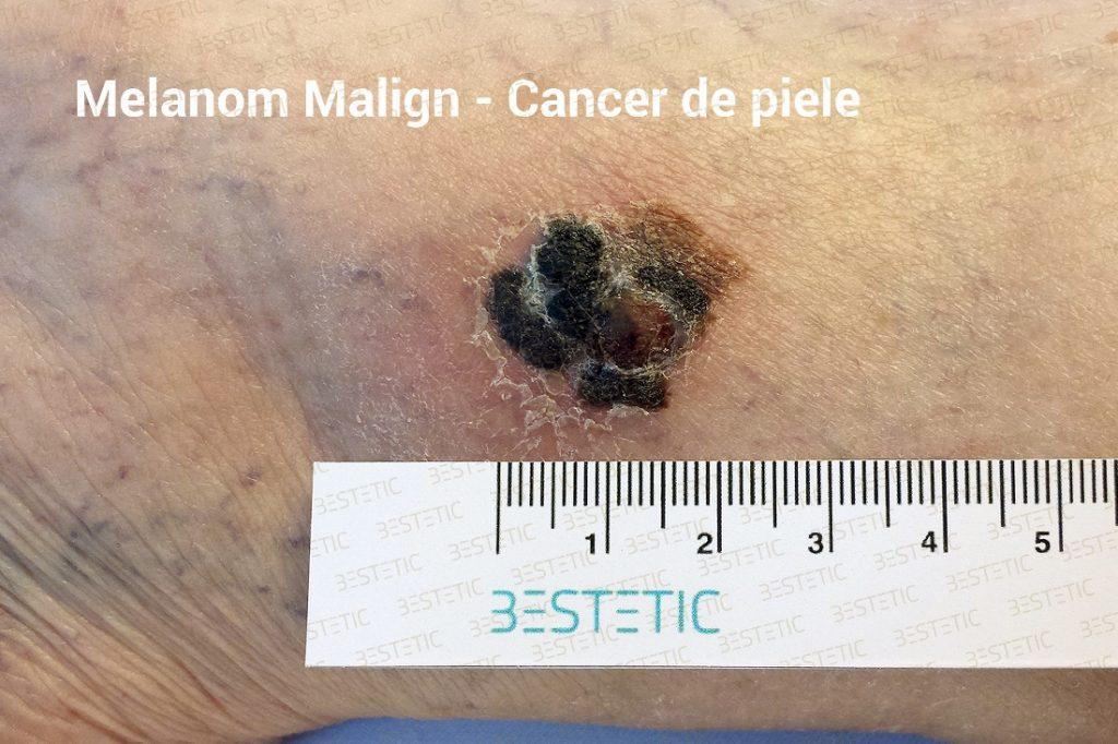 exista cancer malign si benign