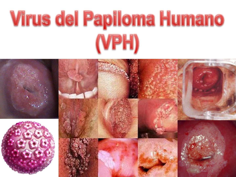 virus de papiloma umana cancer genetic counseling