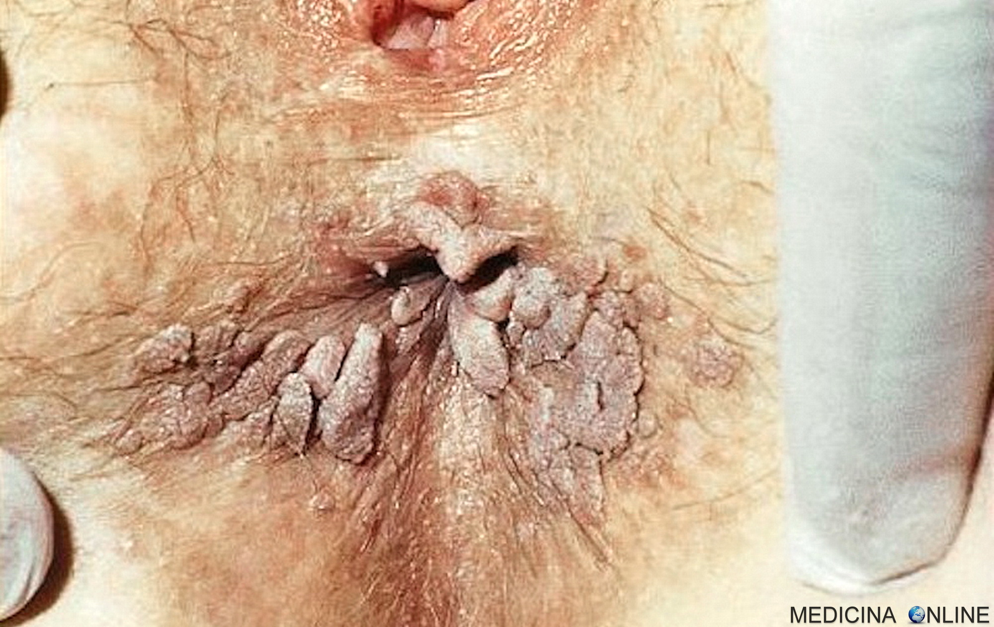 papilloma virus genotipo 82