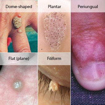 hpv skin warts contagious