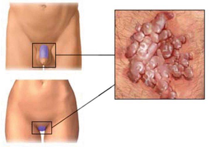 papilloma virus prurito
