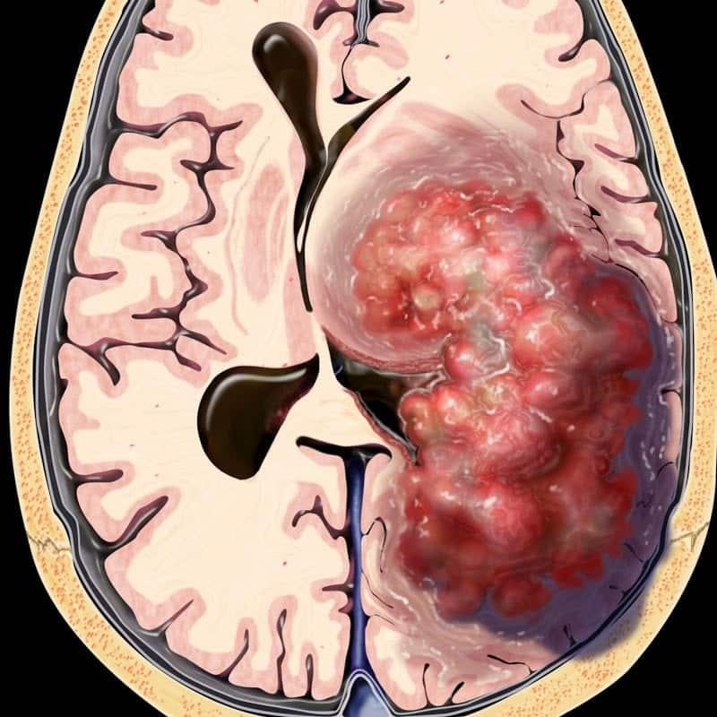 cancer cerebral tipo 2