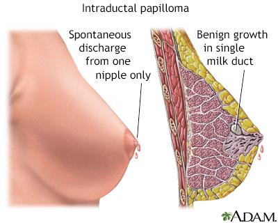 intraductal papilloma pain