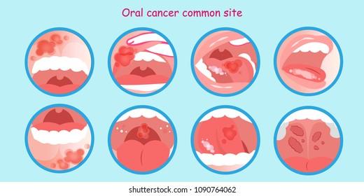 hpv cancer de boca