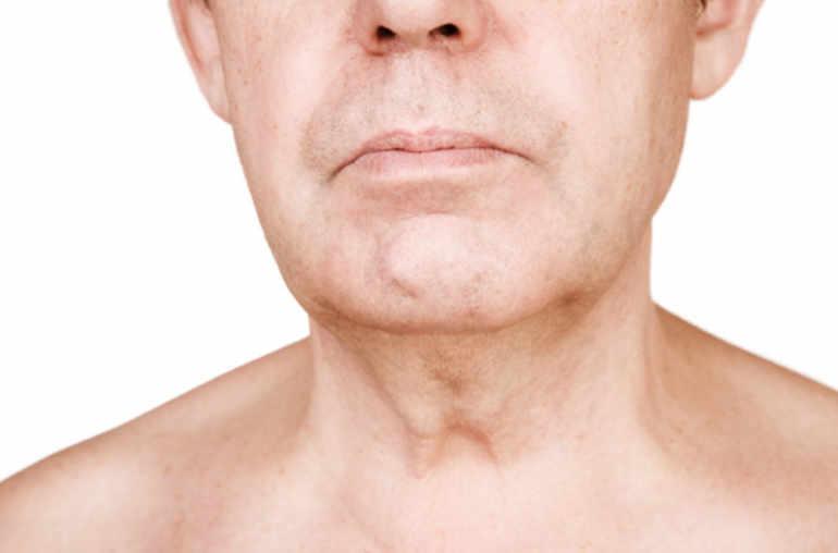 papillomavirus cancer gorge homme