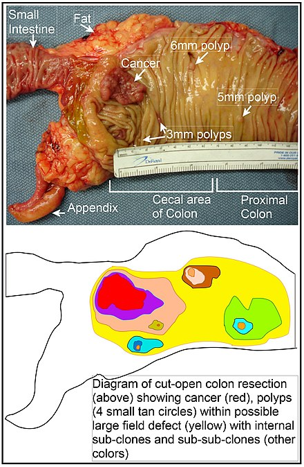 cancer la esofag la copii ovarian cancer zejula