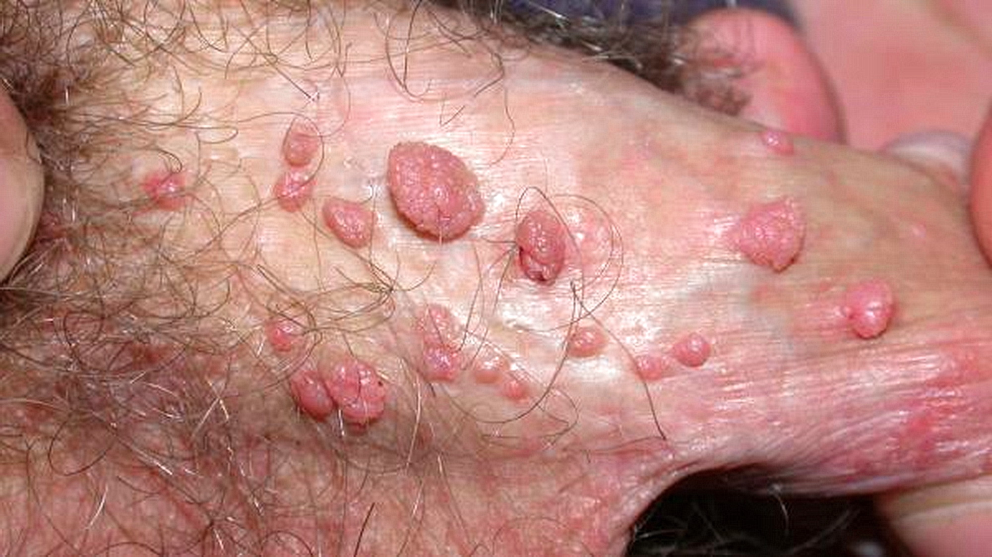 verruche da papilloma virus