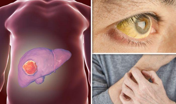 hepatocellular cancer symptoms papillomavirus est ce contagieux